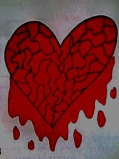 A bleeding heart