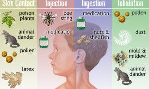 Sebelum ke Dokter Alergi Anak Pastikan Langkah Pertolongan yang Tepat