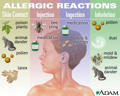 dokter alergi anak